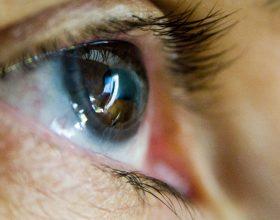 astigmatizm-nedir